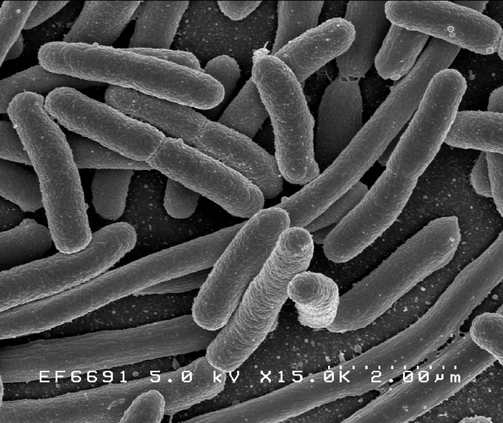 Bacteria seen with a microscope.