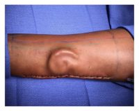 Cartilage in the shape of an ear is shown growing in a patient's forearm.