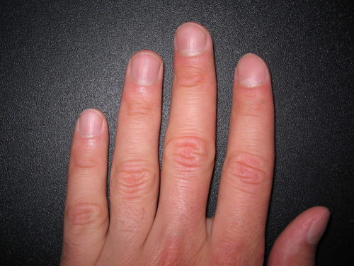 Human fingernails usually grow about an inch and a half (3.6 centimeters) a year.