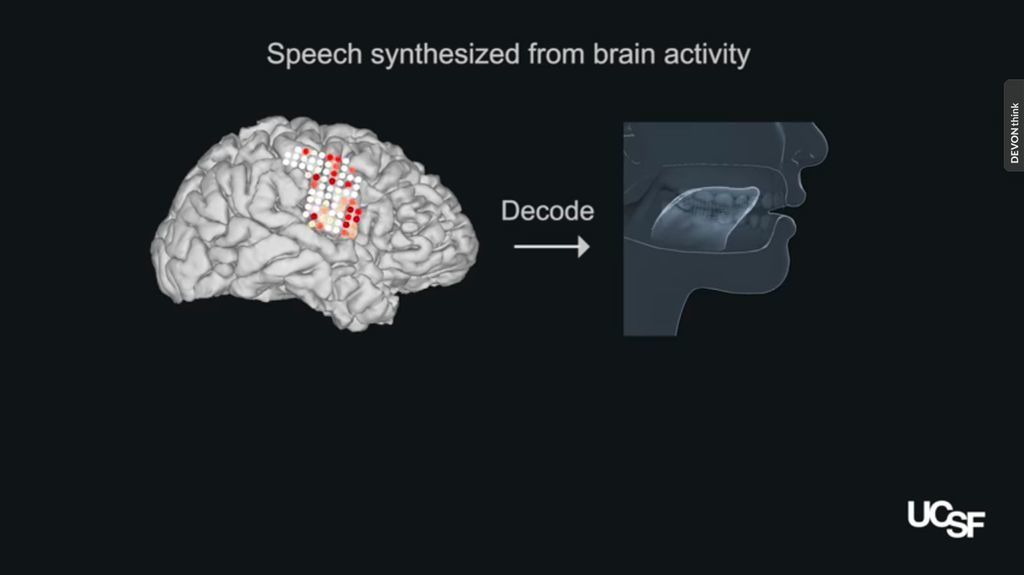 Screen shot of video showing brain signals controlling an artificial vocal tract.