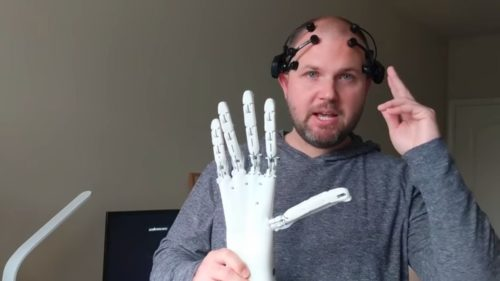 Glenn Cameron, wearing a brain interface, holds his robotic hand.