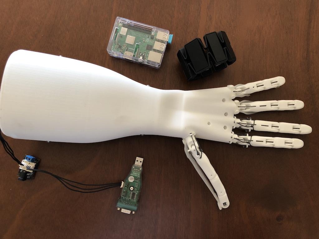 Glenn Cameron's robotic hand.