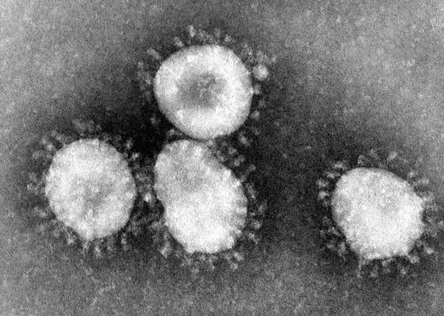 Coronaviruses are a group of viruses that have a halo, or crown-like (corona) appearance when viewed under an electron microscope.