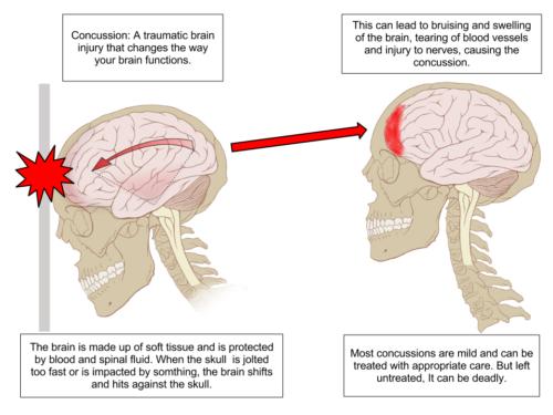 Concussion Diagram