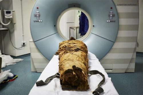 Nesyamun preparing for a CT scan.