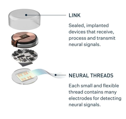 Graphic illustrating the components of Neuralink's Link device.
